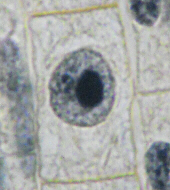 Mitosis Photographs Interphase Onion Root Tip