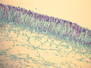 Ascomycota Peziza | www.pixshark.com - Images Galleries ... Ascomycota Peziza